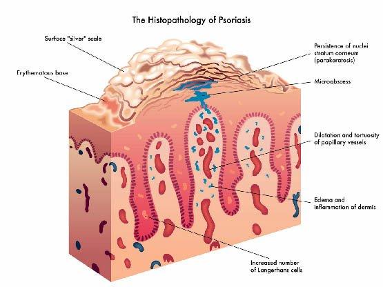 causes-du-psoriasis2