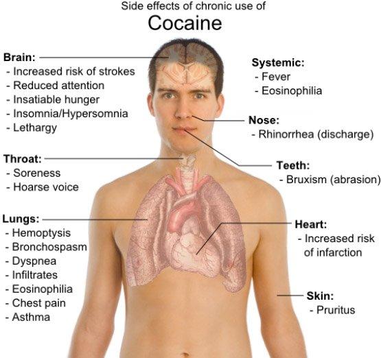 cocaine3