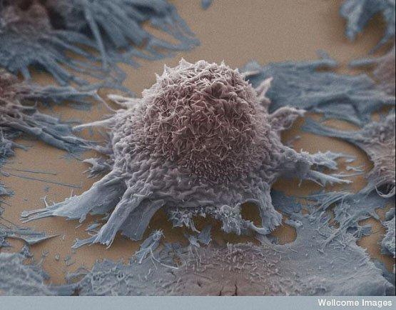 c7aef99011_Cancer_du_poumon_cellules_Anne_Weston-_LRI-_CRUK-_Wellcome_Images_Filckr_nc_nd_01
