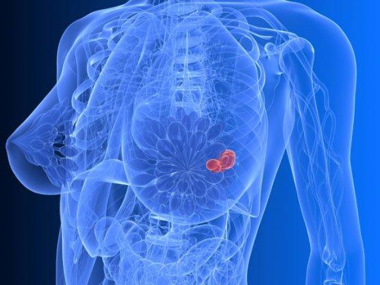 cancer-du-sein-640x480