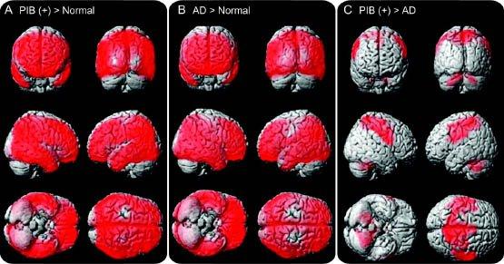 Dementia-Vascular-2
