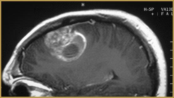 120131_wp3vu_glioblastome-tumeur-cerveau_sn635