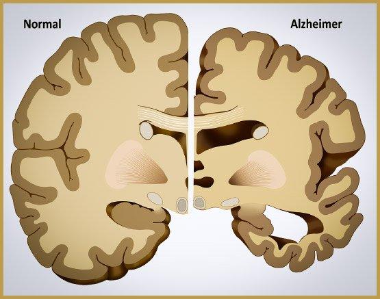 alzheimers-iii-3