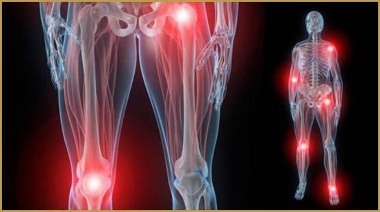 douleurs-articulaires-500x279-500x279