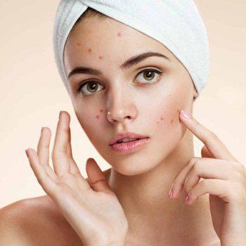 Le CBD contre l'acné, un traitement efficace?
