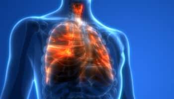 vapotage,lésions pulmonaires liées au vapotage,EVALI