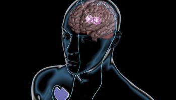 bénéfice du cannabis dans la maladie de Huntington,Les cannabinoïdes améliorent-ils la maladie de Huntington?,maladie de Huntington